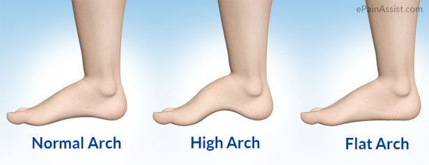 High-Arch-Foot.jpg